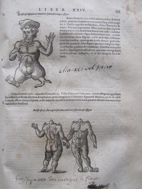 Humanos con deformidades considerados monstruosos